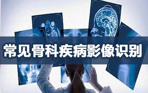 常见骨科疾病影像识别