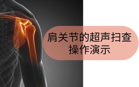 肩关节的超声扫查--操作演示