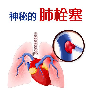 神秘的肺栓塞